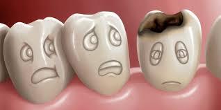obat alami untuk mengobati sakit gigi berlubang. tips dan trik kesehatan. gigi  berlubang 0b2634a301